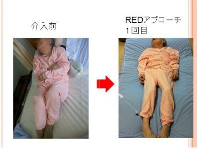 ポジショニングR.E.D.は様々な変化をもたらします                 ~微小重力環境で行う筋緊張制御~